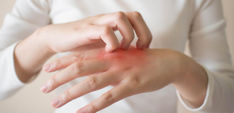 Approfondimento sui vari tipi di dermatite e la giusta cura per ogni tipo di pelle